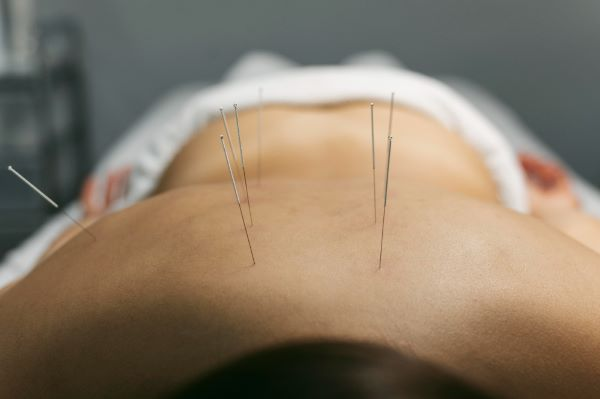 acupuntura efeitos da menopausa no corpo